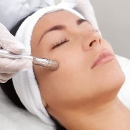 DIAMOND MICRODERMABRASION  WINTER SPECIAL 40% OFF