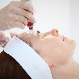 SKIN MICRO-NEEDLING WINTER SPECIAL 50% OFF